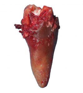 Wurzelbehandelter, toter Zahn