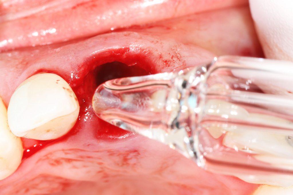 Desinfektion mit Ozon biologische Zahnmedizin