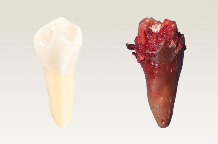 Biologische Zahnmedizin
