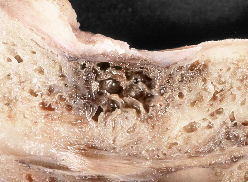 Biologische Zahnmedizin Kranker Knochen