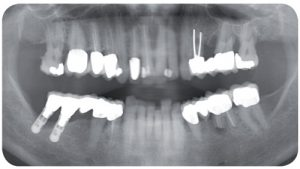 Biologische Zahnmedizin Panoramaröntgenaufnahme