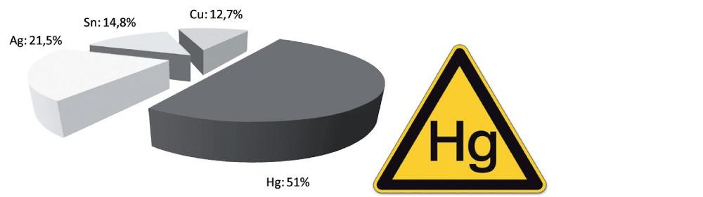 Exemplarische Zusammensetzung einer Amalgamfüllung: 51% Quecksilber (Hg), 21,5 % Silber (Ag), 14,8 % Zinn (Sn) und 12,7 % Kupfer (Cu) (nach Herstellerangaben).