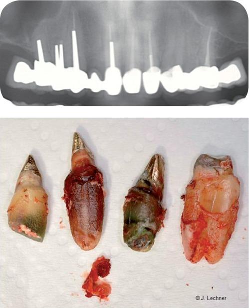 Wurzelbehandelte Zähne auf dem Röntgenbild und in Natura. Totes Gewebe hinterlässt seine Spuren.