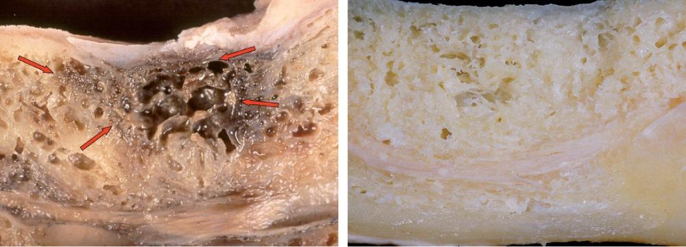 Biologische Zahnmedizin: Kranker vs. gesunder Knochen (Photo: J Oral Pathol Med 1999; 28:423.)