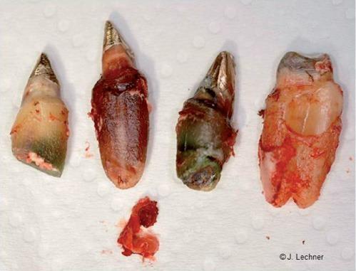 Biologische Zahnmedizin: Wurzelbehandelte Zähne