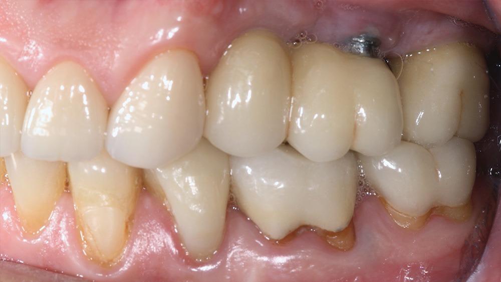 Biologische Zahnmedizin elektromagnetische Felder Keramikimplantate